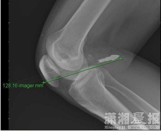 长沙男子小区内被利箭射中 膝盖洞穿12厘米(图)