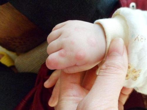 手足口病或在秋冬季出现小高峰