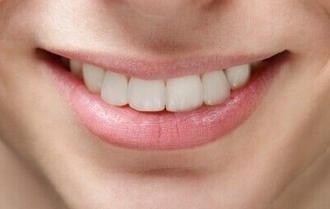 牙齿保健 洗牙抛光都重要