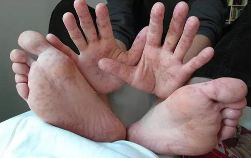 手足口病、疱疹性咽峡炎一年中最高峰来临