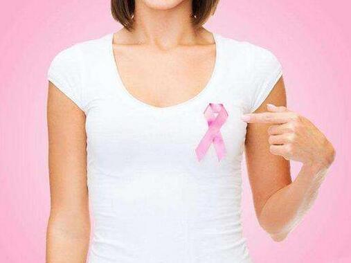 女性應在30歲前評估乳腺癌風險