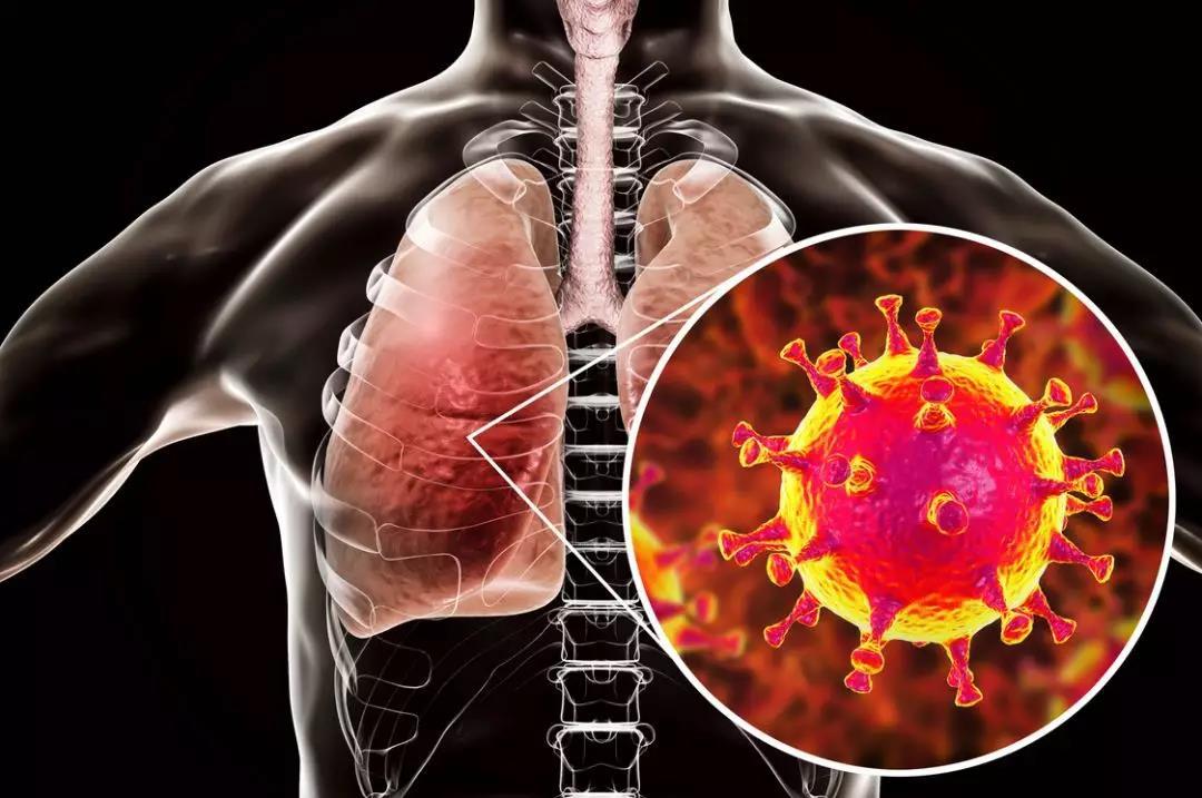 新型冠状病毒 具体预防措施看这里!
